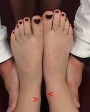 Figure 9: Leg Length Descrepency