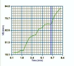 251x222ximett-chart.jpg.pagespeed.ic.Q86YLuWKFo